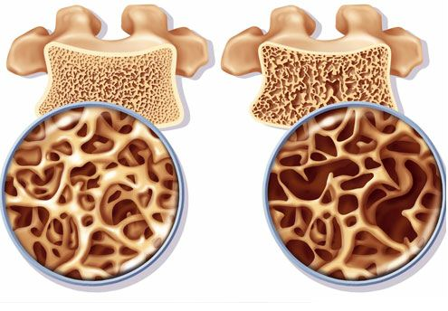 Une alimentation anti-inflammatoire pour limiter les risques d'ostéoporose chez les femmes